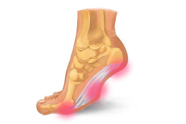 足底腱膜の痛みが出る部分